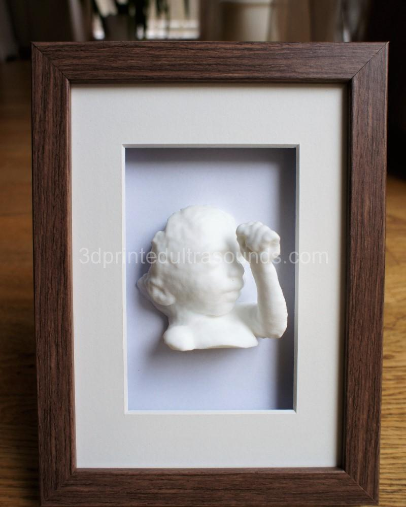 3D Baby with Photo Frame - 3dprintedultrasounds.com