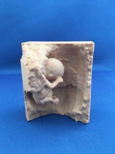 3D printed fetus 11 weeks in Sandstone